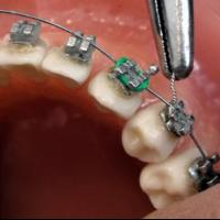 Orthodontist 200x200